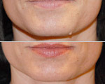 Mole-removal-BeforeAfter_MoleRemoval-